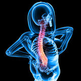Female back pain Royalty Free Stock Photo