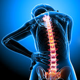 Female back pain Stock Image