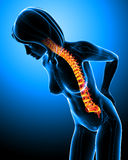 Female back pain Stock Image