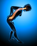 Female back pain Royalty Free Stock Photos