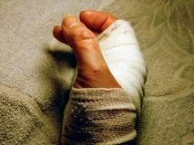 Female bandaged wrist with cuts on a terry sheet background.Close up. Female, woman bandaged wrist, hand with cuts and scratches on a terry sheet background stock image
