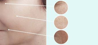 Female beauty wrinkles before after collage beautician effect tension treatments. Female beauty wrinkles before and after treatments correction  tension stock image