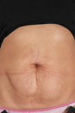 Female belly with stretch marks Royalty Free Stock Photography