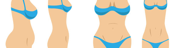 Female body shape before and after a weight loss. Before and after diet picture of a girl's breasts, belly and bottom from a front view and a side view Stock Photography