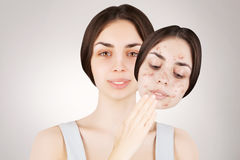 Female brunette releases her skin from pimples Royalty Free Stock Photo