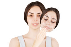 Female brunette releases her skin from pimples Royalty Free Stock Photography