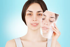 Female brunette releases her skin from pimples Stock Photography