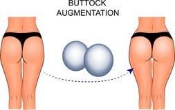 Female buttocks implants, buttock augmentation. Illustration of buttock augmentation. silicone implants Stock Photo