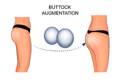 Female buttocks implants, buttock augmentation. Illustration of buttock augmentation. silicone implant Royalty Free Stock Image