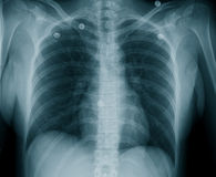 Female Chest X Ray. Ribs and Thoracic Spine can been seen in this X-Ray, taken after my spinal injury (T9 compression fracture). The small discs are metal press royalty free stock image