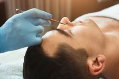 Female cosmetician using blackhead remover. For cleaning man face in spa salon stock photo