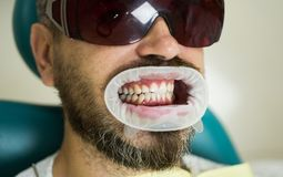 Female dentist checking patient teeth with mirror in modern dental clinic. Dentist comparing teeth whitening of her stock image
