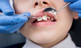 Female dentist examines the teeth of the patient child stock image