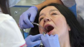 Dentist polishes client`s lower teeth. Female dentist polishing client`s lower teeth. Close up of dental hygienist using prophy cup at her work. Assistant using Royalty Free Stock Photos