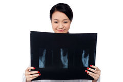 Female doctor analyzing patient's x-ray report Stock Image