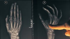 Female doctor demonstrating x-ray image of a hand to a patient. 4K close-up shot stock video