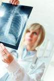 Female doctor examinig an x-ray Stock Photo