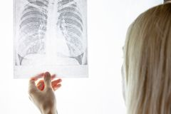 Female doctor examining fluorography, x-ray. Lung desease and treatment concept royalty free stock photos