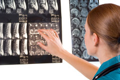 Female Doctor examining MRI image Royalty Free Stock Images