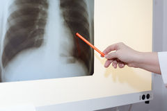 Female doctor examining an x-ray Stock Image