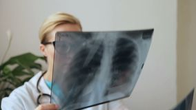 Female doctor with glasses holds up series of X-ray picture of breast. stock footage