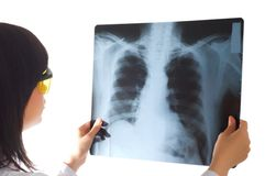 Female doctor looking at x-ray image on white Stock Images