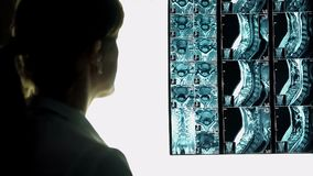 Female doctor looking at roentgen image, patient neck X-ray, diagnosing patient. Stock footage Stock Photography