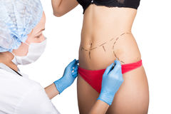 Female doctor makes dotted line on female body for cellulite correction. cosmetic surgery. lifting and breast Royalty Free Stock Image