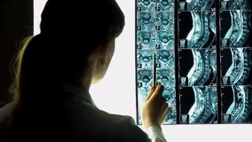 Female doctor pointing at patient x-ray, medical examination, health problem. Stock footage stock image
