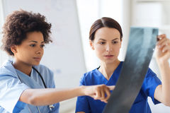 Female doctors with x-ray image at hospital. Radiology, surgery, people and medicine concept - female doctors looking to and discussing x-ray image at hospital Stock Image