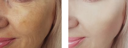 Female eye beauty wrinkles difference before after dermatology antiaging regeneration treatments. Female beauty eye wrinkles before and after treatments stock photo