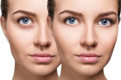 Female eyes with bruises under eyes before and after cosmetic treatment. royalty free stock photo