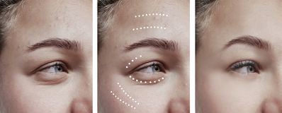 Female eyes wrinkles effect therapy regeneration removal correction before and after treatments patient royalty free stock photos