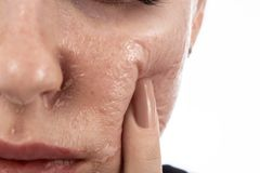Skin after peeling. Female face with burned skin after chemical peeling stock photography