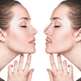 Female face before and after cosmetic nose surgery Stock Photo