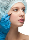 Female face before plastic surgery operation Royalty Free Stock Photo
