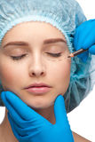 Female face before plastic surgery operation Royalty Free Stock Photos