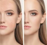 Woman before and after treatment. The female face of woman before and after treatment, collage Royalty Free Stock Image