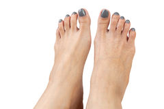 Female feet with eczema infect,  on white background, cl. Female feet with eczema infect ,  on white background, closeup Stock Photos