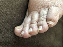 Female foot with damaged nails because of fungus. Closeup of female foot with damaged nails because of fungus stock images