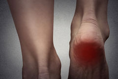 Female foot heel pain colored in red. Closeup female foot heel pain colored in red royalty free stock images