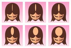 Female hair loss illustration Royalty Free Stock Image