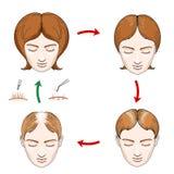 Female hair loss and transplantation icons Stock Image
