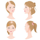 Female hair loss Royalty Free Stock Images