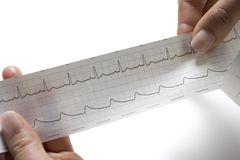 Female hand holding an ecg Stock Photos