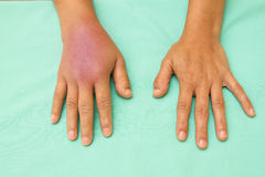 Female hands one swollen and inflamed. After accident stock photos