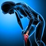 Female knee pain Stock Photos