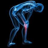 Female knee pain Stock Photography