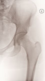 Female Left Hip X-Ray Stock Images
