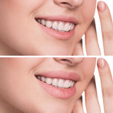 Female lips before and after augmentation Stock Image